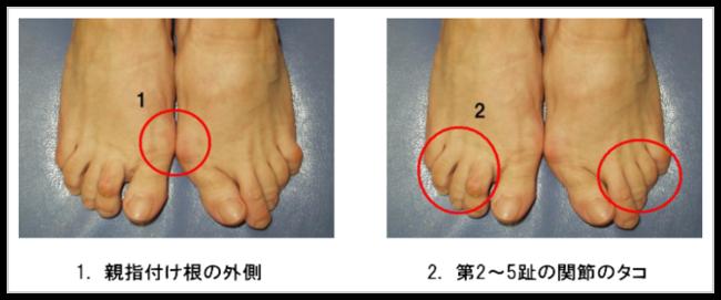 の 足 が 付け根 痛い の 小指